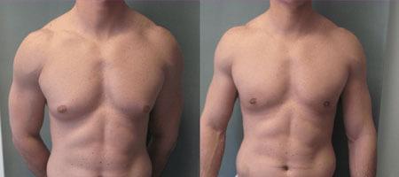 Body Builders Gynecomastia