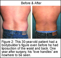 30 year old liposuction patient