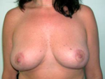 Breast Reduction for Women