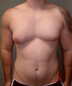 asymmetric breast surgery for men