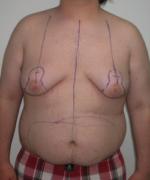 Severe Gynecomastia